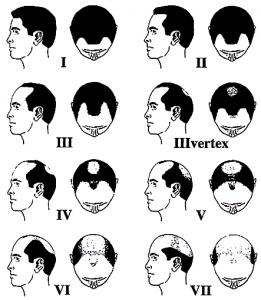 norwood scale balding alopecia